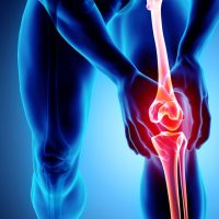 rendering of a person holding their knee in pain with the leg bones highlighted