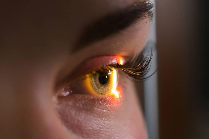 close up of an eye during an eye exam