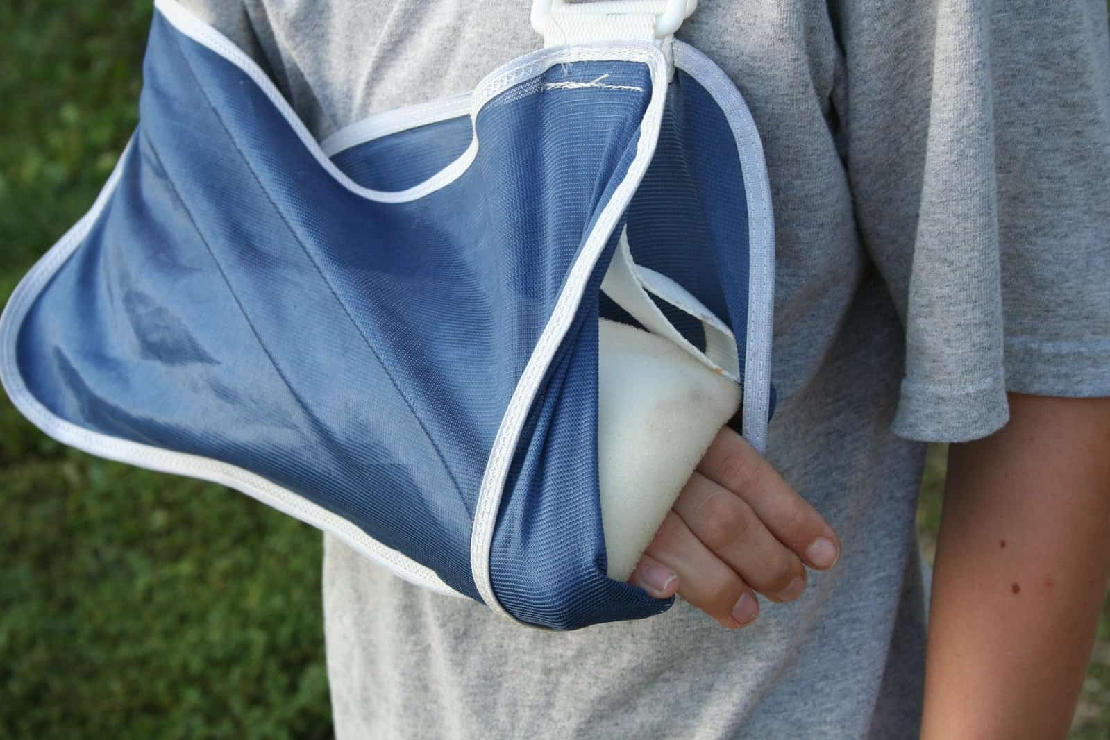 close up of a broken arm in sling and cast