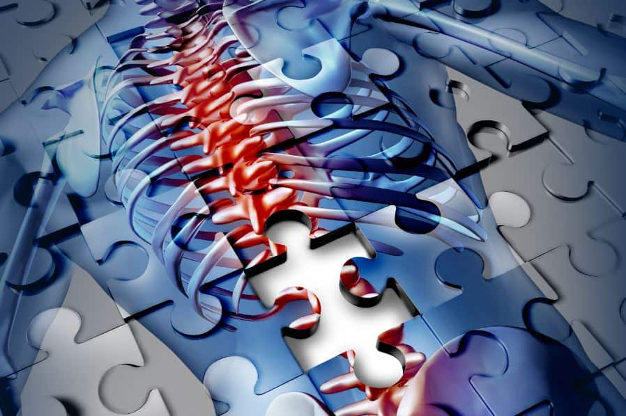 puzzle pieces making up an image of a spine