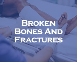 Broken Bones And Fractures - doctor setting a cast around a leg