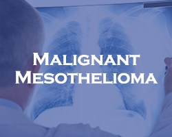 Malignant Mesothelioma - blue over a doctor looking a an x-ray of lungs